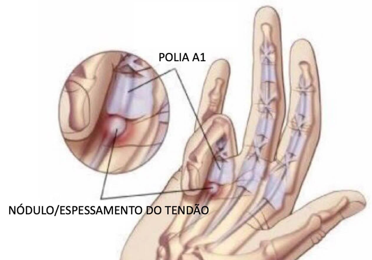 Dedo em Gatilho | Dra. Renata Paulos