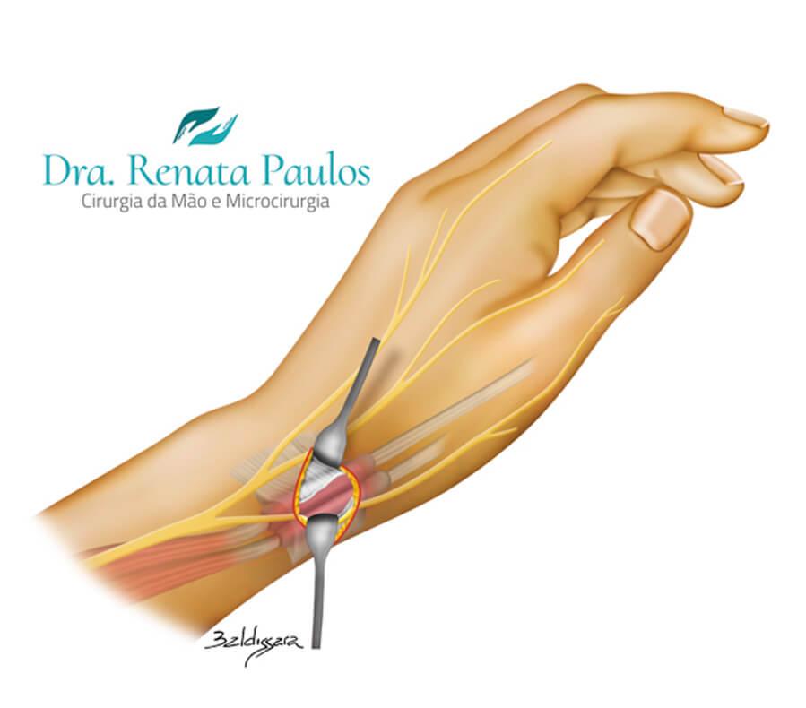 Cirurgia para Tenossinovite | Dra. Renata Paulos