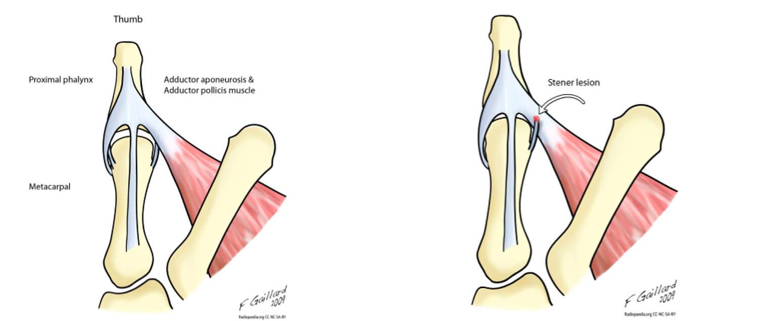 Anatomia habitual e a lesão de Stener | Dra. Renata Paulos