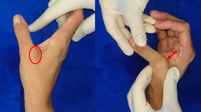 Lesão Ligamento Colateral Ulnar Polegar