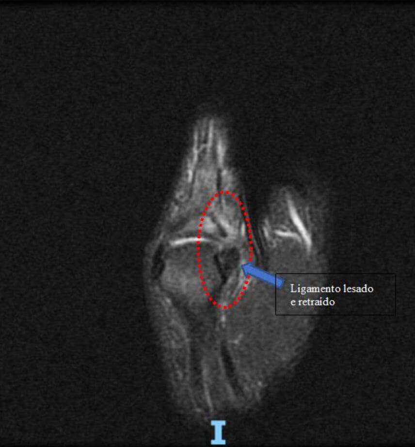 Figura: Exemplo de ressonância magnética evidenciando lesão completa do ligamento colateral ulnar da articulação metacarpofalangeana do polegar