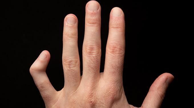 Deformidades Do Dedo Mínimo