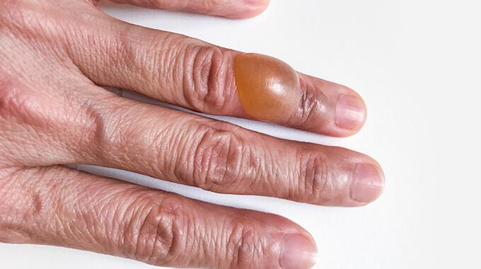 Tumor De Células Gigantes (TCG) Da Bainha Tendínea